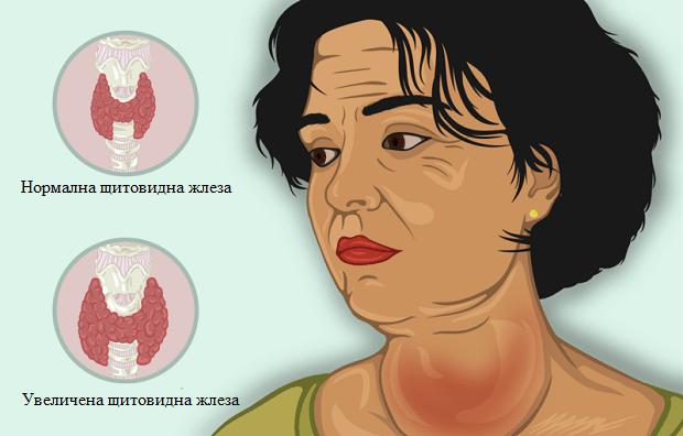 нарушения във функцията на щитовидната жлеза