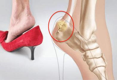 ювенилна остеохондроза на костите на стъпалото