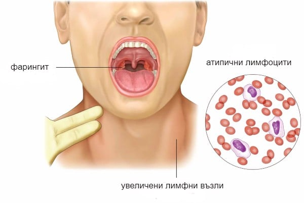 Характерни симптоми при инфекциозна мононуклеоза