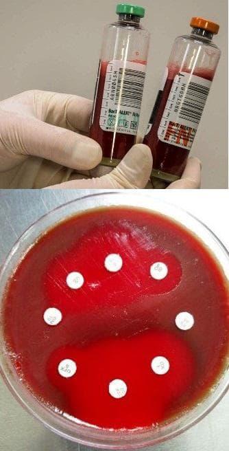 Хемокултура и антибиограма