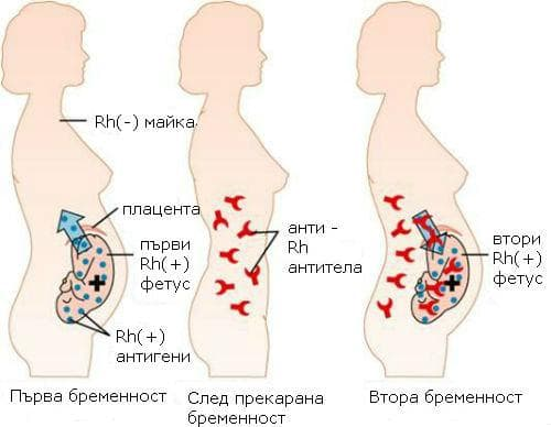 Rh(-) майка и Rh(+) фетус