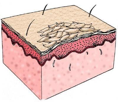 хиперкератоза