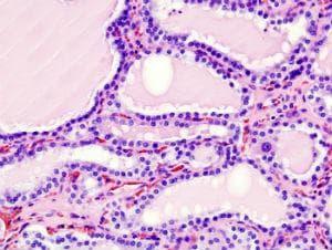 микроскопско изследване на хипертиреоидизъм