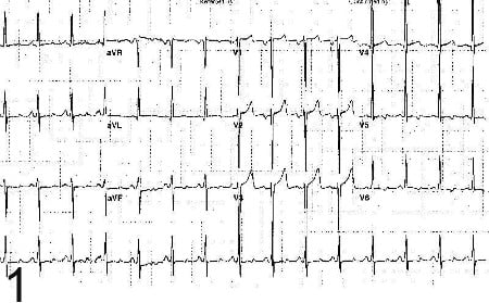 ЕКГ при хипертонична болест на сърцето