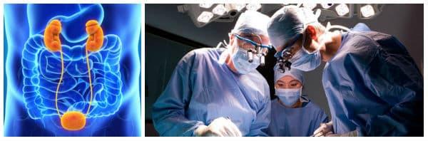 Хирургично лечение (операция) при рак на пикочния мехур