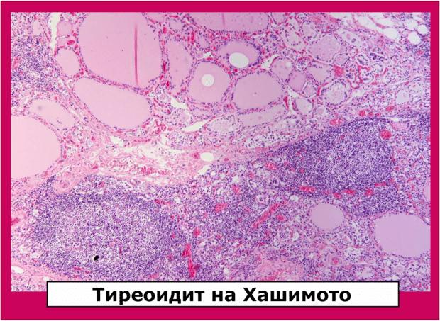 Антитела срещу щитовидната жлеза