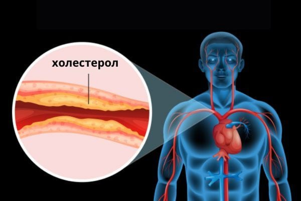 Запушване на артерии