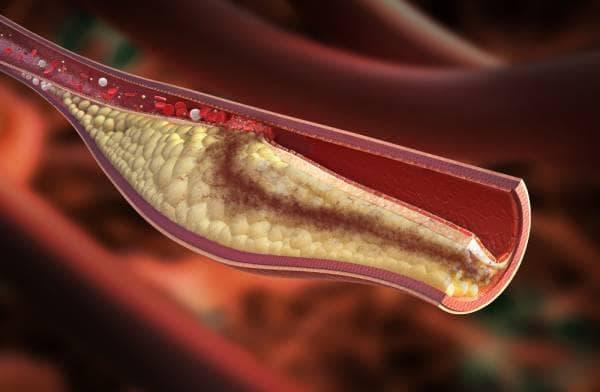 Холестеролна плака