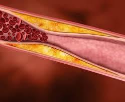 Отлагане на холестерол в кръвоносните съдове