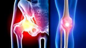 Остеоартрит на коляно и тазобедрена става