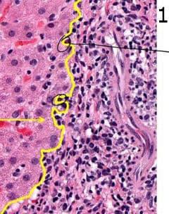 микроскопско изследване на хроничен хепатит