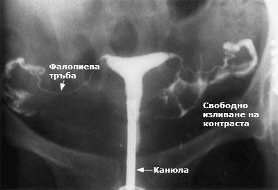 Флуороскопия при HSG