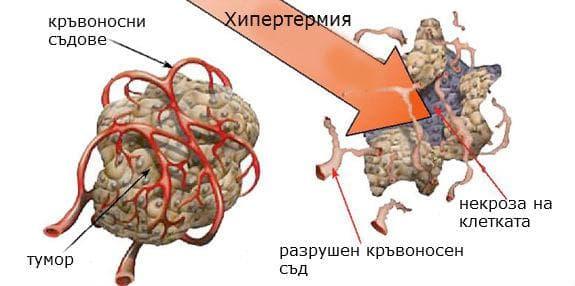 Въздействие на хипертермията върху раковите клетки