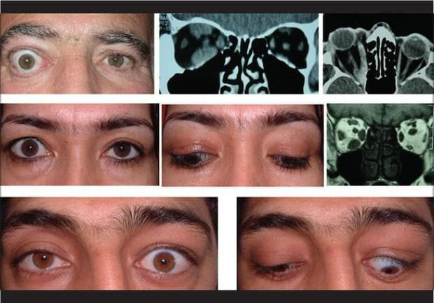 Офталмопатия при хипертиреоидизъм