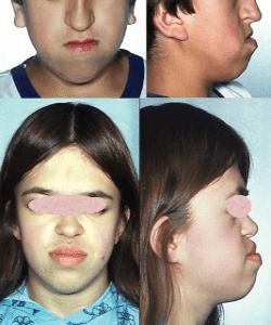 Ризомелична хондродисплазия пунктата