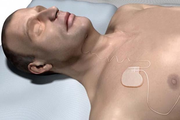 Inspire имплант при сънна апнея