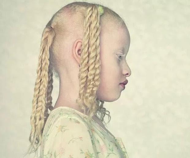 Албинизъм