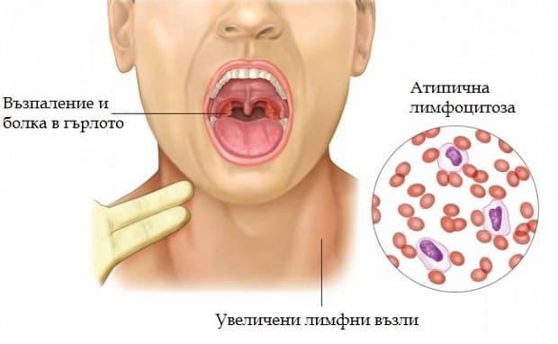Инфекциозна мононуклеоза