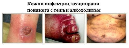 Кожни инфекции