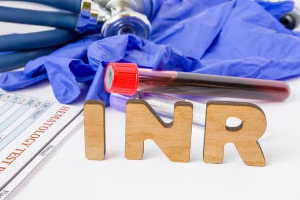 Изследване на INR