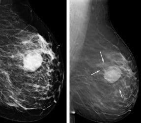 Мамографското изследване