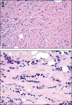 микроскопско изследване на инвазивен лобуларен карцином