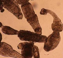 Инвазия, предизвикана от Echinococcus multilocularis, неуточнена - етиология