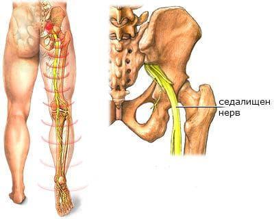 Разположение на седалищния нерв