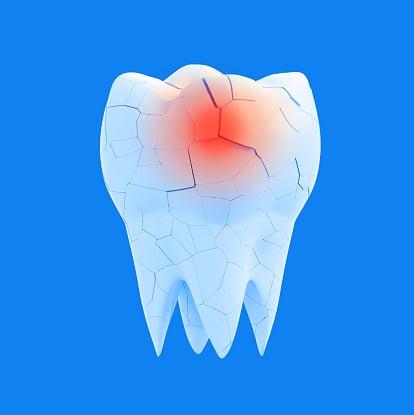 Болезнен зъб