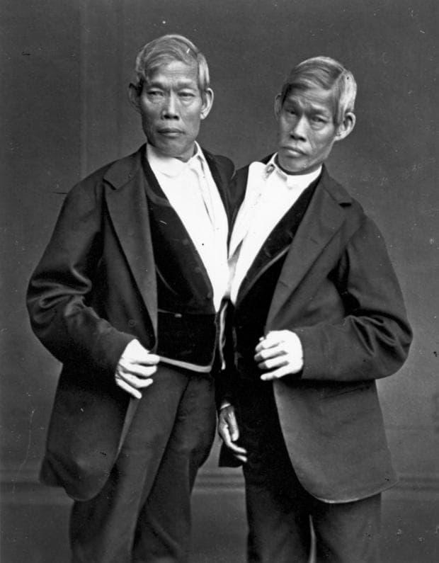 Сиамски близнаци