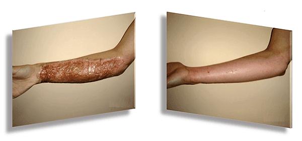 Използване на бактериална целулоза при изгаряне в рамките на само 6 дни