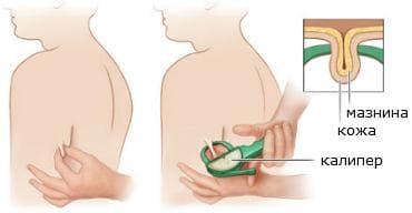 Измерване на кожна гънка