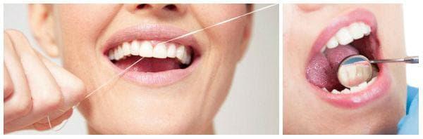 Използвате ли конец за зъби?