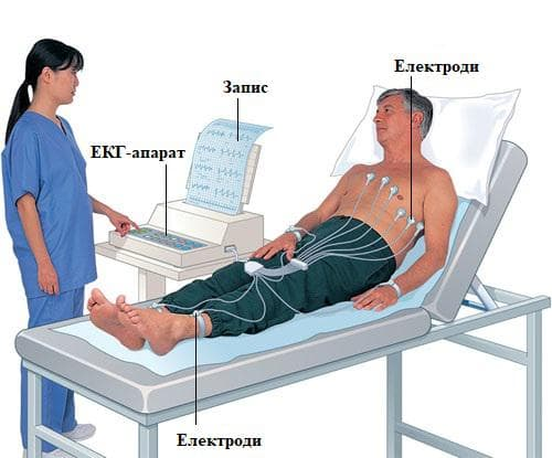 електрокардиограма