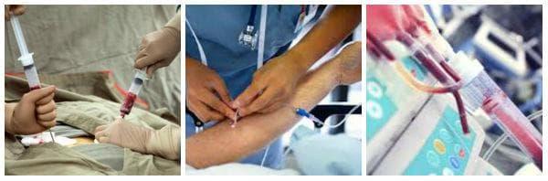 Какви рискове крие извършването на костномозъчна трансплантация?