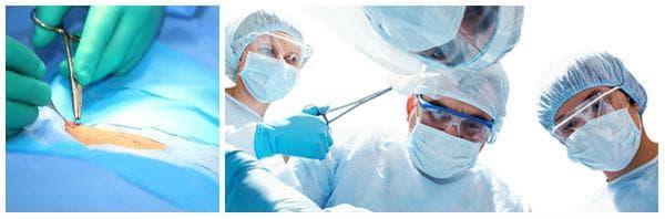 Какви рискове крие извършването на оофоректомия?