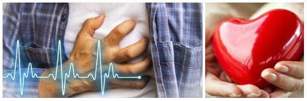 Какво да не правим при инфаркт (сърдечен удар)?