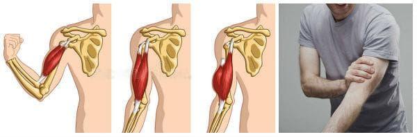 Какво представлява руптура на сухожилие (скъсано сухожилие) - симптоми
