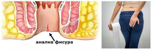Какво представлява аналната фисура? Какви са симптомите?