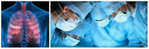 Какво представлява белодробната трансплантация (пулмонална трансплантация)?
