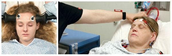 Какво представлява електроконвулсивната терапия?