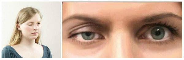 Какво представлява миастения гравис? Кои са характерните симптоми?