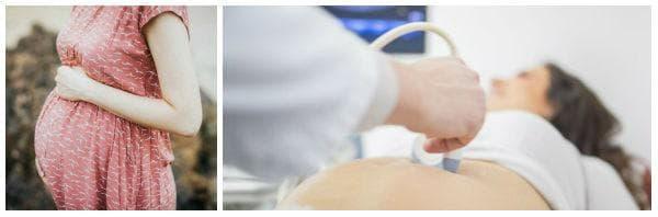 Какво представлява плацента превия: рискове и усложнения