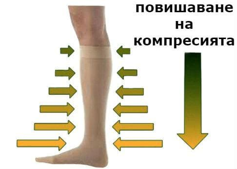 Какво представляват еластичните чорапи?
