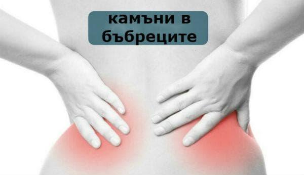 Камъни в бъбреците (нефролитиаза, бъбречнокаменна болест)