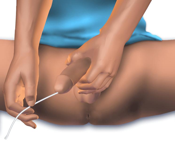 Катетеризация на пикочен мехур при мъже