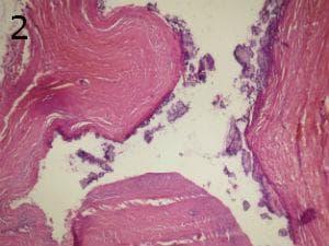 микроскопско изследване на кисти на панкреаса
