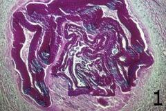 микроскопско изследване на ехинококоза