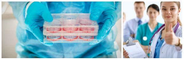 Кога е необходима трансплантация на стволови клетки