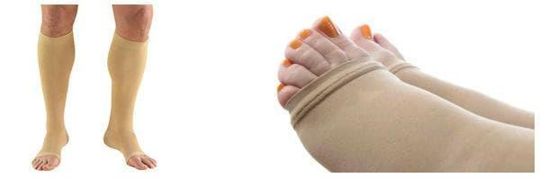 Кога се прилага лечение с еластични чорапи?